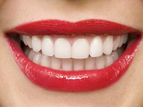 Chirurgia estetica dentale