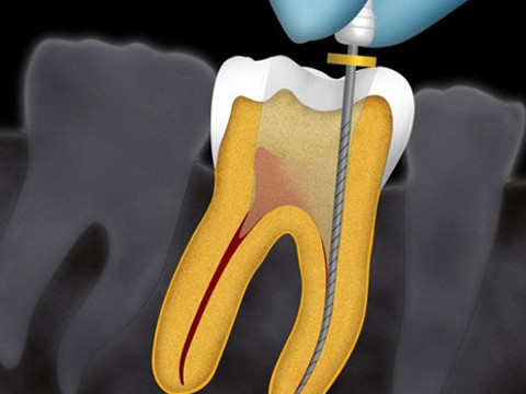 Cura del cavo orale tramite endodonzia